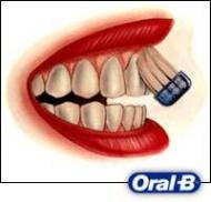 A szájápolás technikája