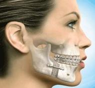 Sinus lift - arcüreg alapjának megemelése csontpótlás, csontnyerés céljából