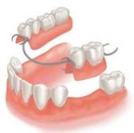 Részleges kivehető fogsor