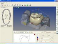 CAD-CAM számítógép által vezérelt mikron pontosságú technológia