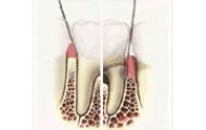 Parodontológia (fogíny, fogágy)