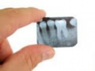 Digitális kis röntgen