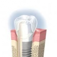 IMPLANT DIRECT (sistema USA)