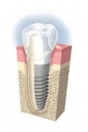 IMPLANT DIRECT (USA rendszer)