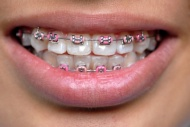 Tudnivalók a rögzített fogszabályozó készülékekről