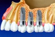 Implantológia (fogbeültetés)
