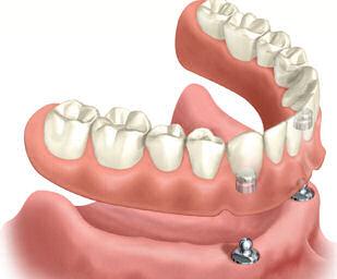 Részleges fogsor fém alaplemezzel (kapocselhorgonyzás)