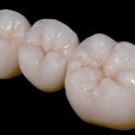 Metal-free ceramic crown with zirconium skeleton (per element)