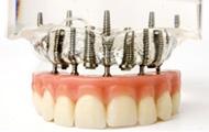 Mini és tű implantátumok