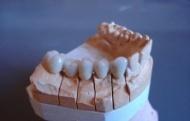 Dentaltech - fogtechnikai szolgáltatásunk!