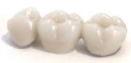 Hagyományos tangencionális csiszolású teljes kerámia (porcelán) korona,3 év garancia!