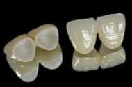 Nidemet K+B korona: akrilát (műanyag) leplezésű fémvázas korona